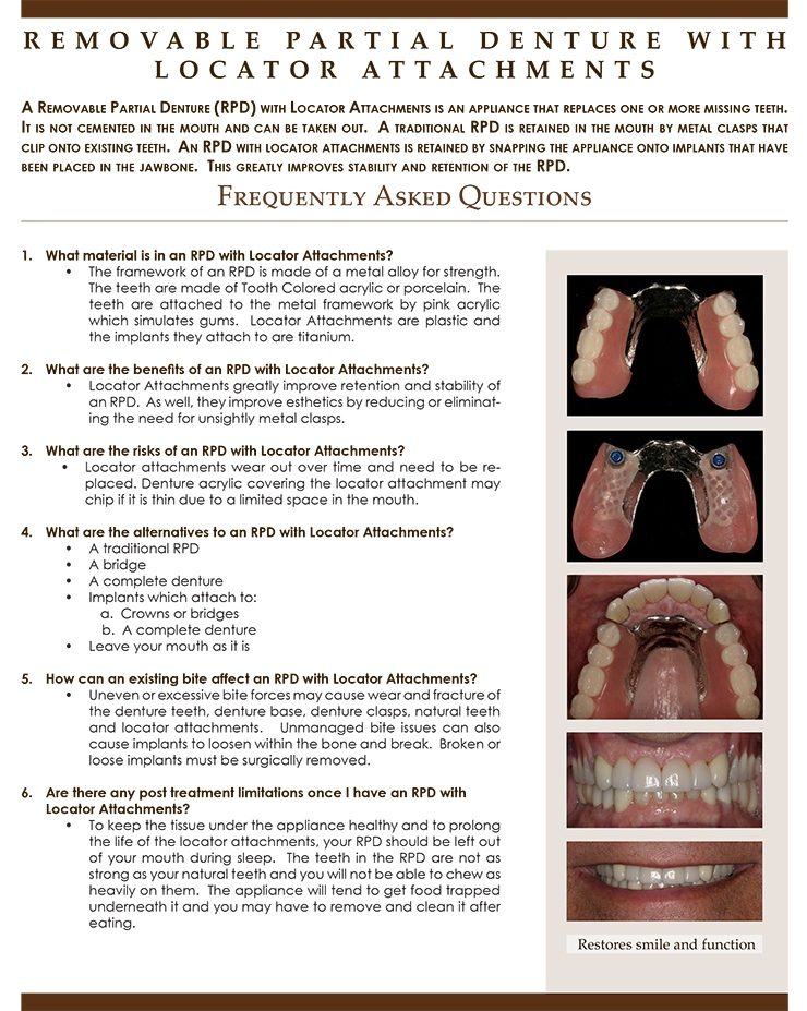 Removable_Partial_Denture_with_Locator_Attachments.jpg