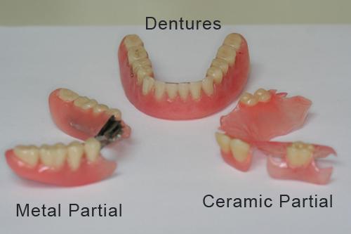 partial_denture.jpg