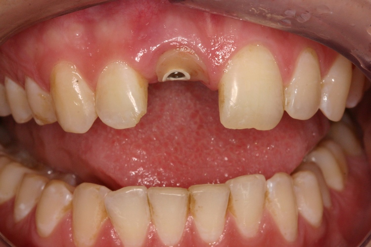 Dental_Implants_3.JPG