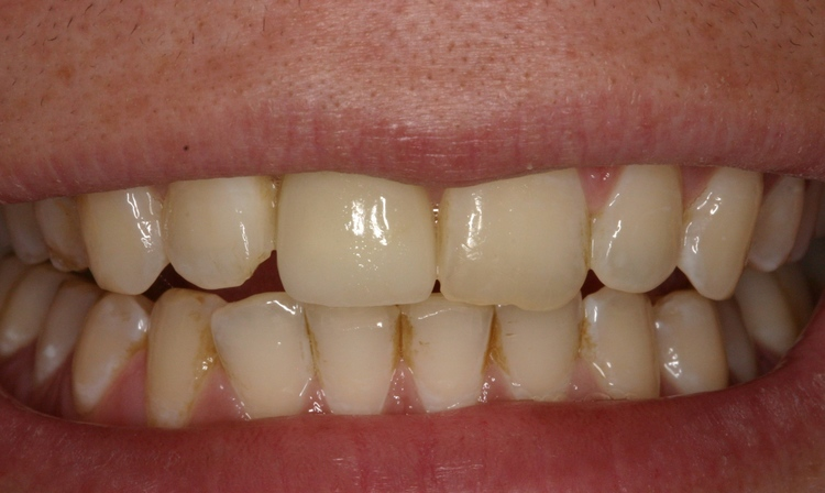 Dental_Implants_4.JPG