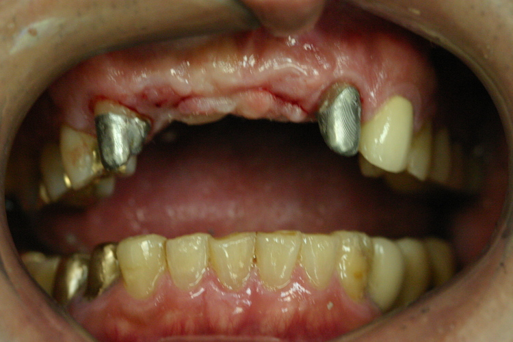 Dental_Implants_5.JPG