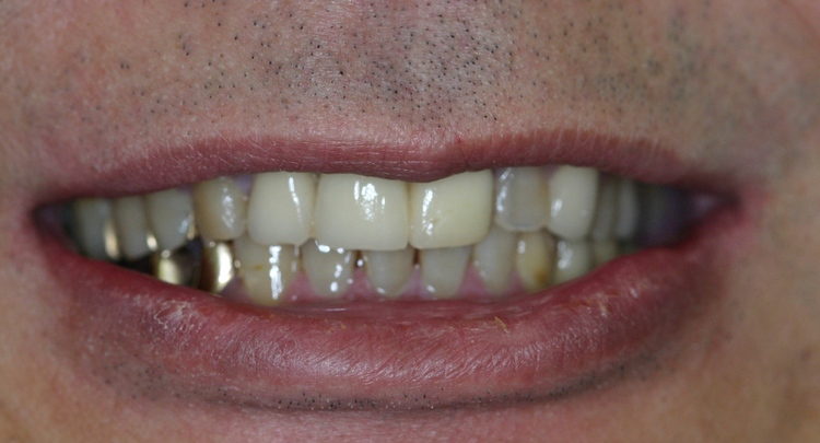 Dental_Implants_6.JPG