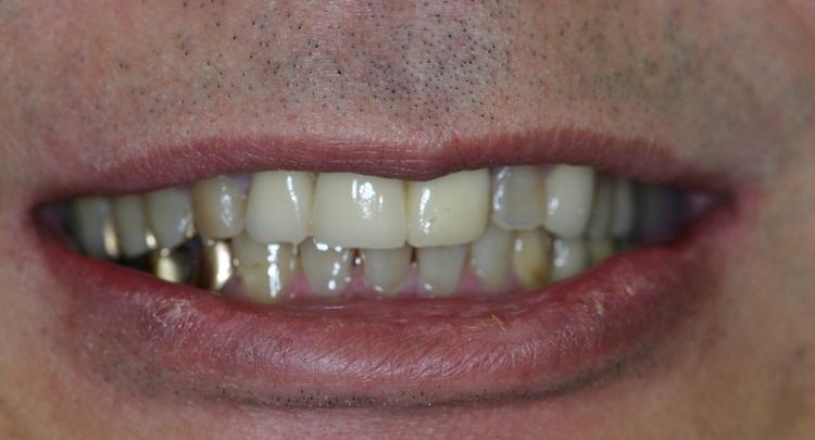Dental_Implants_6.JPG