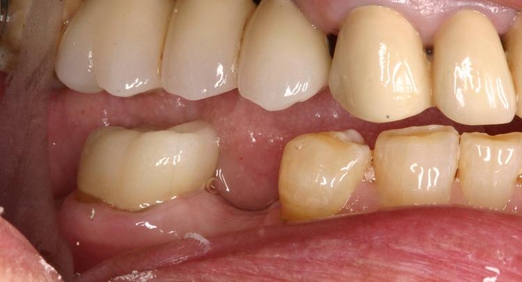 Dental_Implants_7.JPG