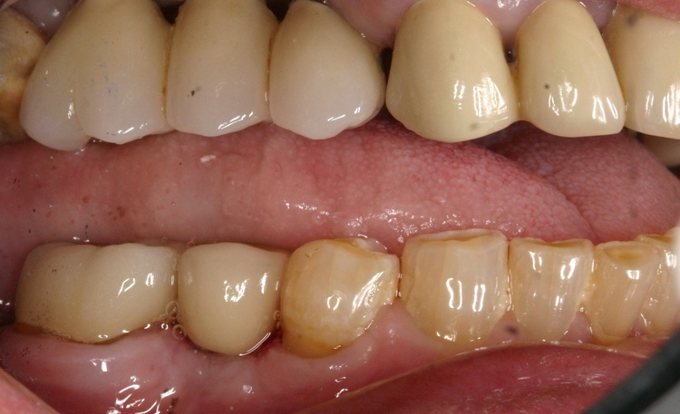 Dental_Implants_8.JPG