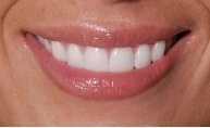 Lalitha Smile Dental in Petaluma CA