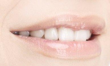First Sierra Dental in Fresno CA