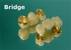 bridge_sm.jpg