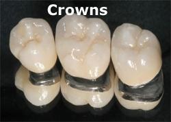 crowns_sm.jpg