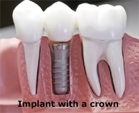 implant_crown_sm.jpg