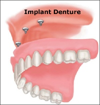 implant_denture_sm.jpg