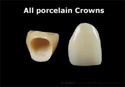porcelain_crowns_sm.jpg