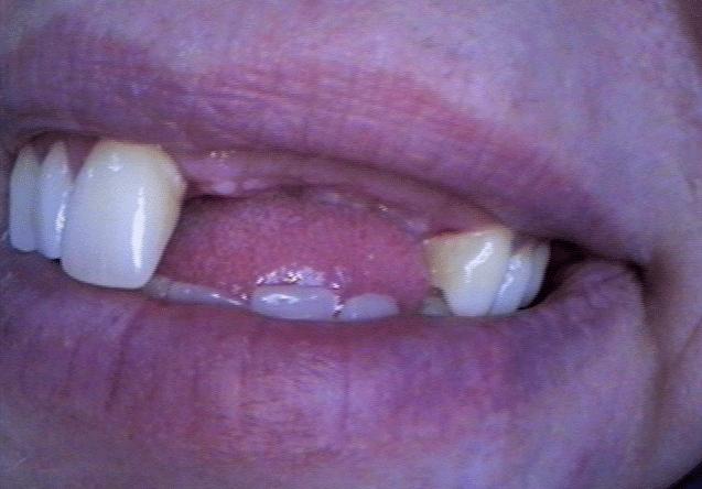 implant_sup_bridge_bef.png
