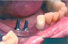 implant_bridge1.jpg
