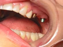 implant_bridge3.jpg