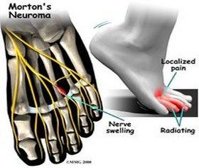 Halifax Podiatrist | Halifax Morton's Neuroma | NS | Bennett Podiatric Medical Center |
