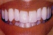 teethwhiteningaf.jpg