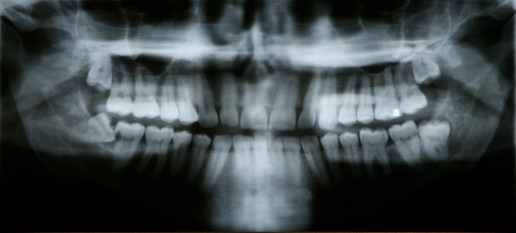 2after_impacted_teeth.png