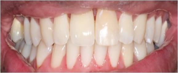Both teeth were restored with esthetic porcelain fused to high noble gold crowns.