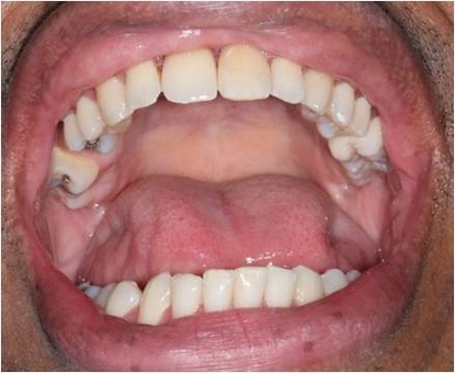 Replaced missing teeth with a partial denture