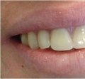 Replaced existing amalgam filling with a new composite filling