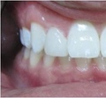 Existing root decay and amalgam filling was removed and tooth was restored with a porcelain fused to high noble gold crown.