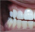 Existing amalgam and decay was removed and tooth was restored with a composite filling.