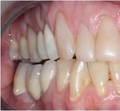 Restored tooth with a porcelain fused to high noble gold crown