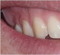 Repaired chipped tooth with bonding material