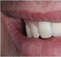 Instead of moving the teeth with Orthodontics fixed crowding with chair-side veneers