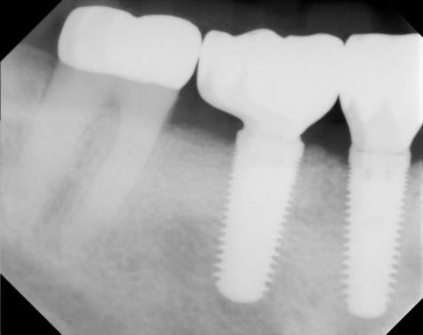 Implants with crowns replacing bridge