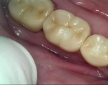 Photo of implant supported crowns replacing bridge