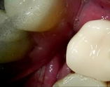 Restored one visit, no impressions, no temporary, using state of the art 3D technology