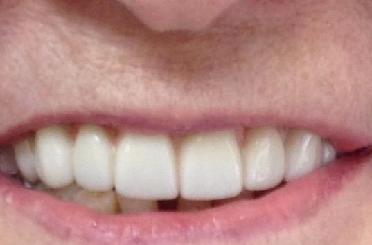 Belle Mead, NJ Dentist | Dentist in Belle Mead, NJ