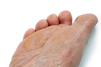 Austintown Podiatrist | Austintown Athlete's Foot | OH | Mitchell Dalvin, DPM |