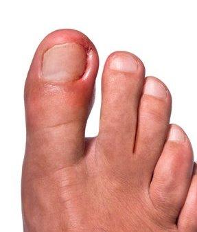 Austintown Podiatrist | Austintown Ingrown Nails | OH | Mitchell Dalvin, DPM |