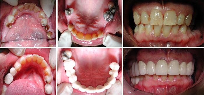Dental_Implants1.jpg