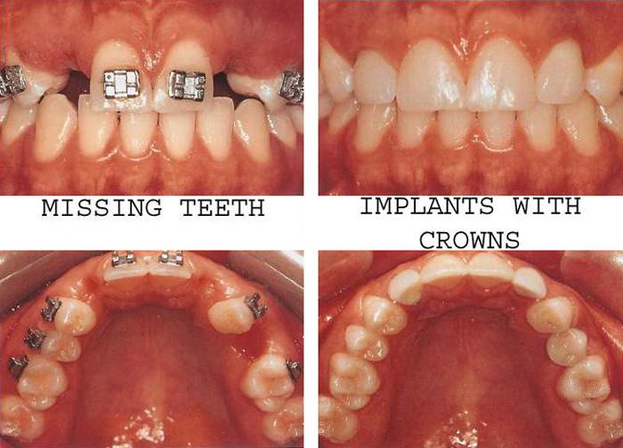 Dental_Implants3.jpg