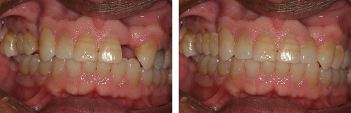 Dental_Implants5.jpg