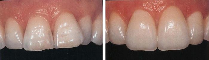 Front_Teeth1.jpg