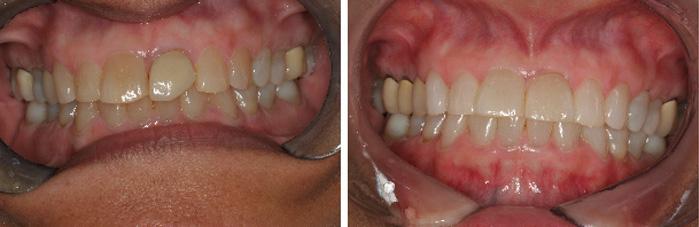 Front_Teeth10.jpg