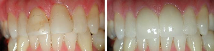Front_Teeth2.jpg