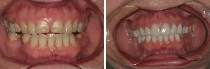 Front_Teeth4.jpg