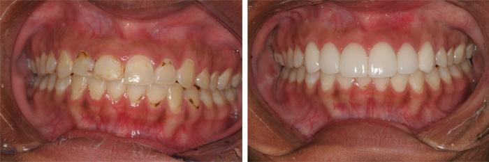 Front_Teeth9.jpg