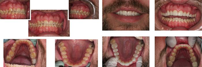 Teeth_Grinding2.jpg