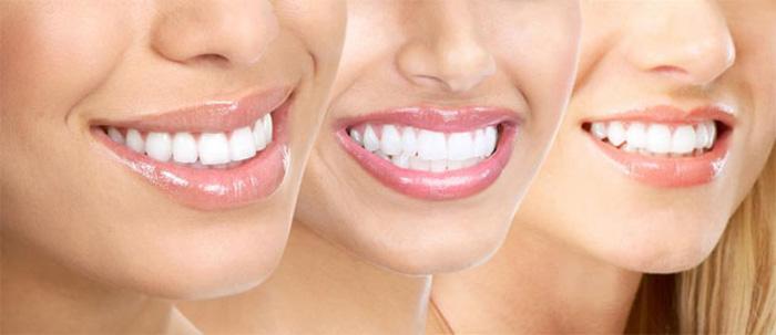 cosmetic_dentistry_lafayette.jpg