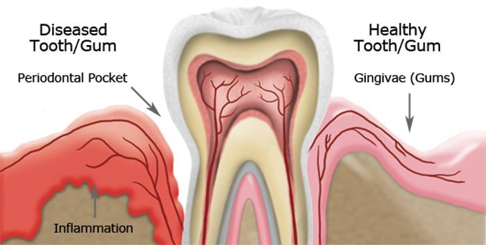 gum_disease_illustration.jpg