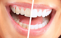 Teeth Whitening Dentist Lalit Thanki