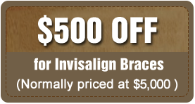 invis_coupon_discount.png