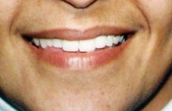 smile11b.png